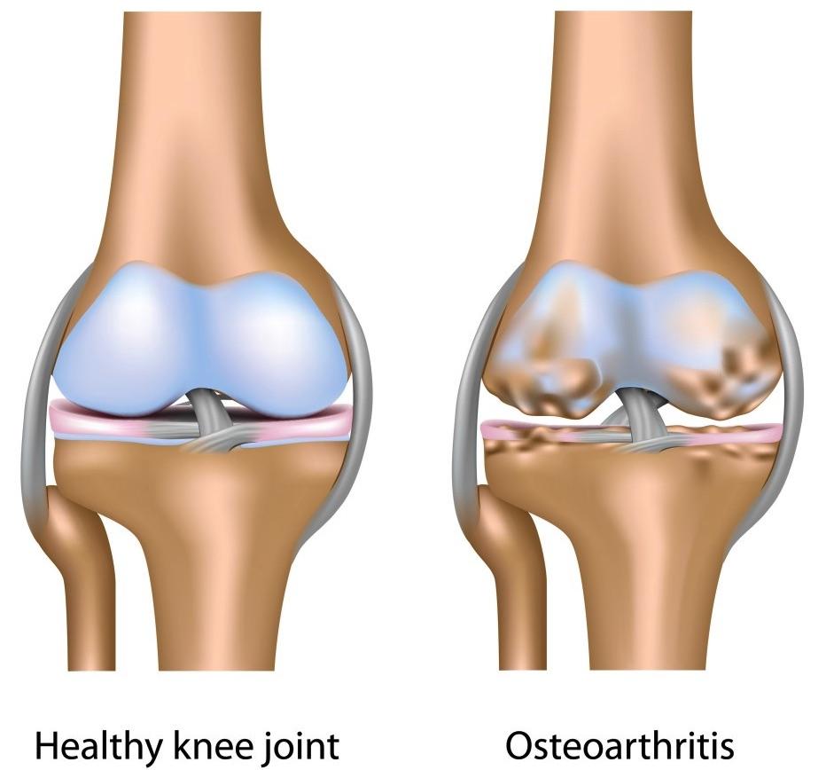 Osteoarthritis-of-Knee-Joint