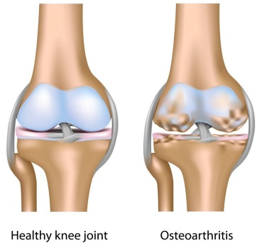 Osteoarthritis-of-Knee-Joint